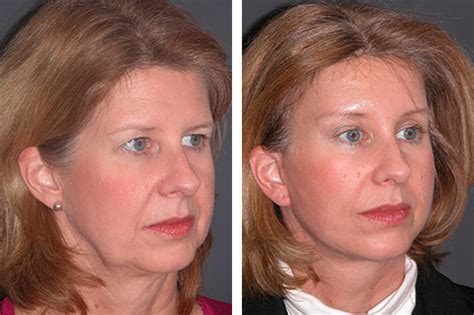 lower face and neck lift facial plastic surgery photos before and after photos