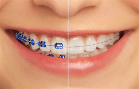 clear braces with color traditional metal clear esthetic braces seymour