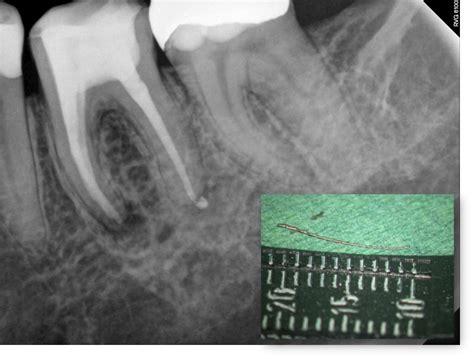 wann ist abgeheilt die endodontische mikrochirurgie zahnarztpraxis dresden