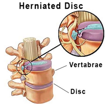 herniated disc diagram pinched nerve back diagram pinched free engine