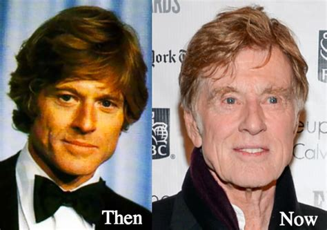did robert redford dye his hair when he ws young latest plastic surgery gossip and news plastic surgery