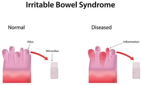 sindrome colon irritabile test irritable bowel ibs treatment in israel d r