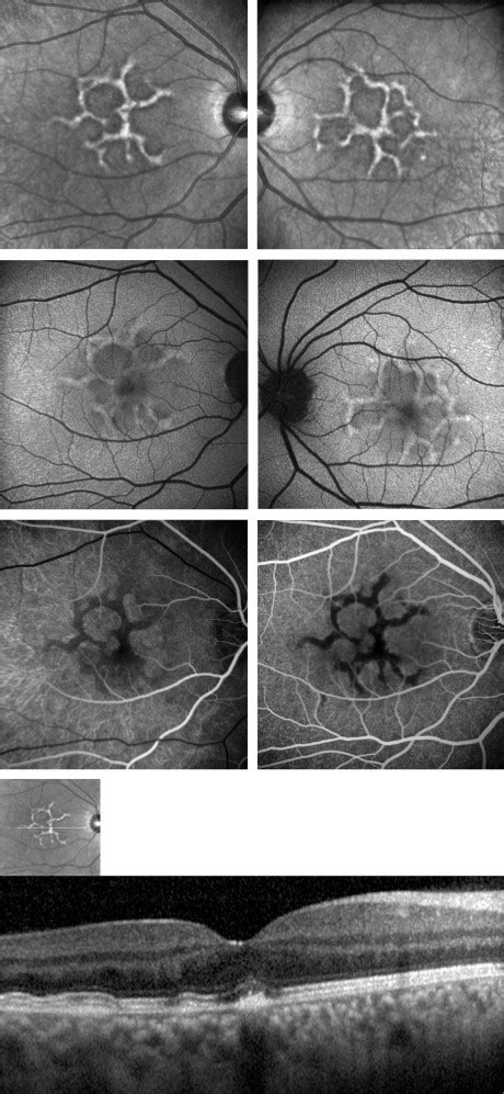 early pattern dystrophy reticular pattern dystrophy of the retina a spectral