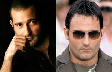 akshay khanna hair transplate bollywood celebs pre and post hair transplant