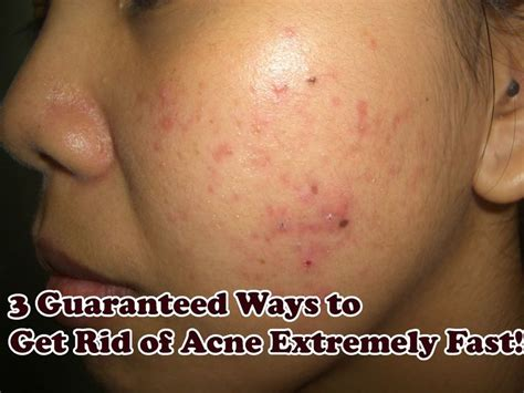 Get Rid Of Acne by 3 Guaranteed Ways To Get Rid Of Acne Extremely Fast