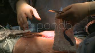 surgeon uses sternum saw during open surgery stock 10687153 hd stock footage