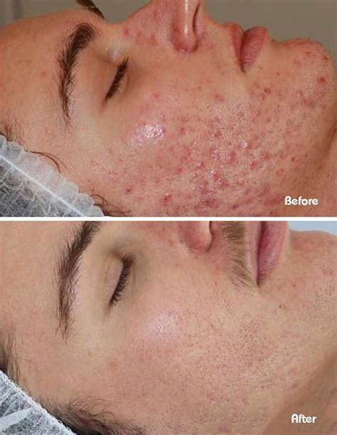 best acne treatment where is the best place for acne treatments