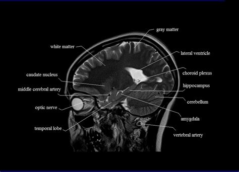 sagittal cross section mri sagittal cross sectional anatomy of brain image 16