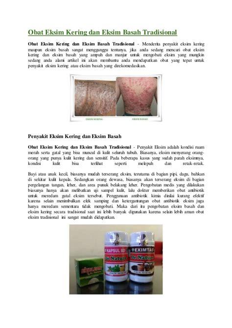 Obat Eksim Basah obat eksim kering dan eksim basah tradisional
