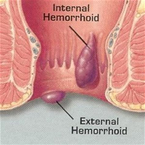 external hemorrhoid pain hemorrhoid relief otc hemorrhoids natural treatment