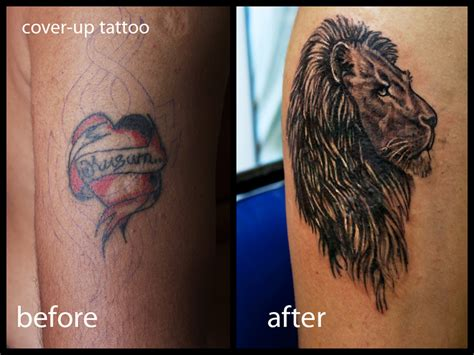 tattoo removal or cover up removal services chicago laser removal