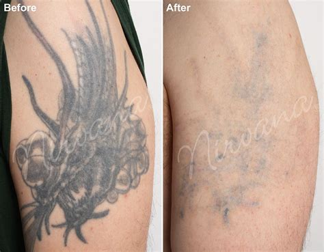 laser tattoo removal results removal remove tattoos with vanish s all