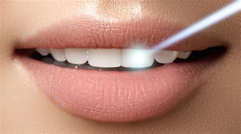 whiten  teeth  enamel  harmed quora