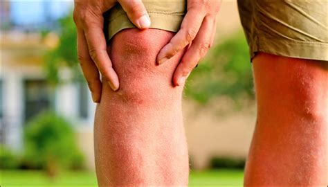 weight loss knee overweight weight loss can knee joint