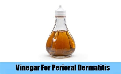 6 cures for perioral dermatitis how to treat