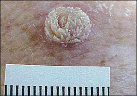 wart cross section wart cross section 28 images wart cross section www