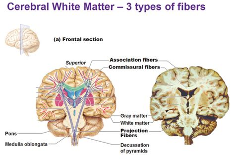 parts of matter cerebral white matter and gray matter and basal ganglia