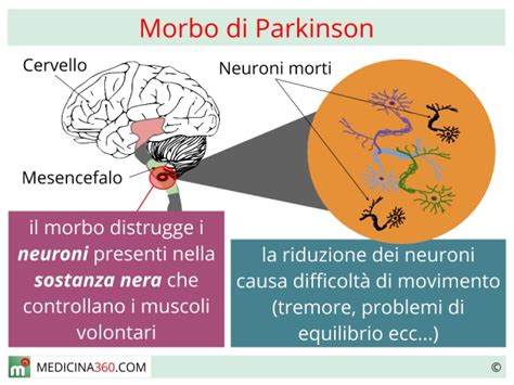 alimentazione parkinson morbo di parkinson cos 232 sintomi cause e cure