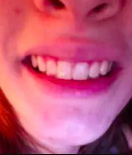 teeth whitening kits     amazon