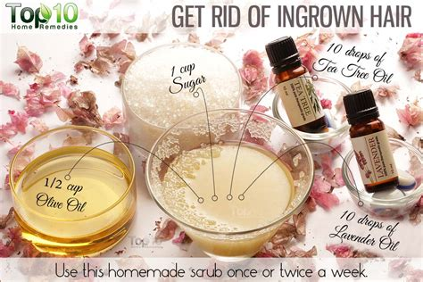 home remedies for ingrown hair top 10 home remedies