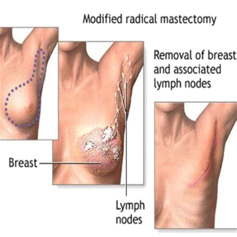 breast reconstruction following mastectomy image gallery mastectomy reconstruction