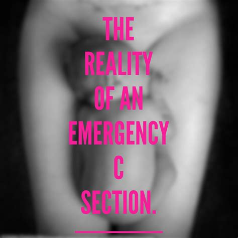 Emergency Caesarean Section by Emergency C Section Experience The Reality
