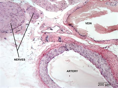 cross section of an artery circulatory np histology