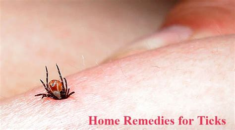 22 home remedies for ticks home remedies natural