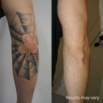 how a tattoo works how laser removal works laser removal in