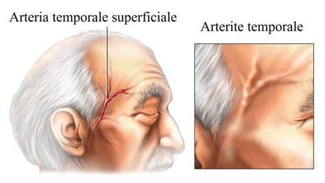 mal di testa continuo mal di testa continuo o frequente nausea cause rimedi