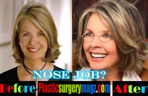 Diane Is Terrified Of Plastic Surgery by Diane Keaton Plastic Surgery Before And After Photos