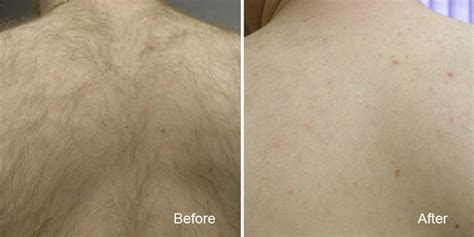 canada hair removal clinic canada hair removal clinic results gallery beautiful canadian laser skin care clinic