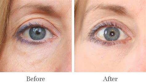 Harga Clear C Peeling Serum moonlight pbn eye anti wrinkles skin care