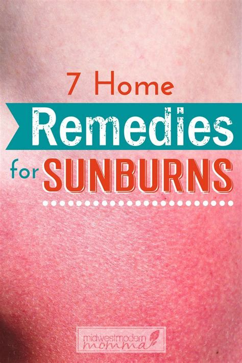 best 25 home remedies for sunburn ideas on