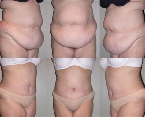 free tummy tuck after c section reason for the popularity behind cosmetic surgery prlog
