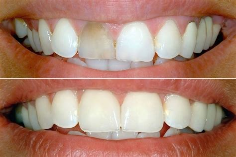 teeth whitening   key part  cosmetic dentistry