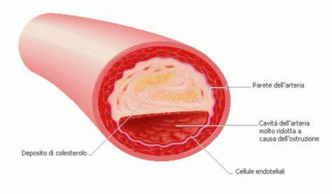 vasi arteriosi scienza e musica l aglio lo scacciaviri