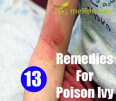 13 home remedies for poison treatments cure