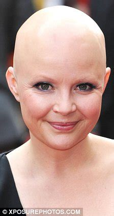 Is Bald She by Gail Porter Appears On Quot Matthew Wright Quot Tv Show As She
