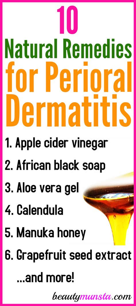 top 10 remedies for perioral dermatitis including