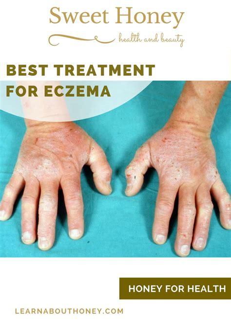 best treatment for eczema best treatment for eczema sweet honey