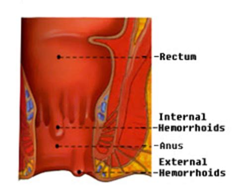 Mucus In Stool Hemorrhoids by Bloody Mucus Stool A Common Hemorrhoidal Symptom