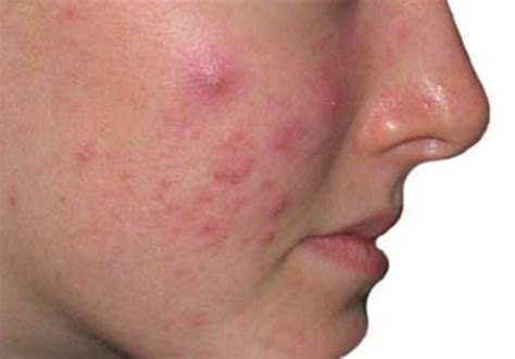 tips  alami menghilangkan jerawat  wajah