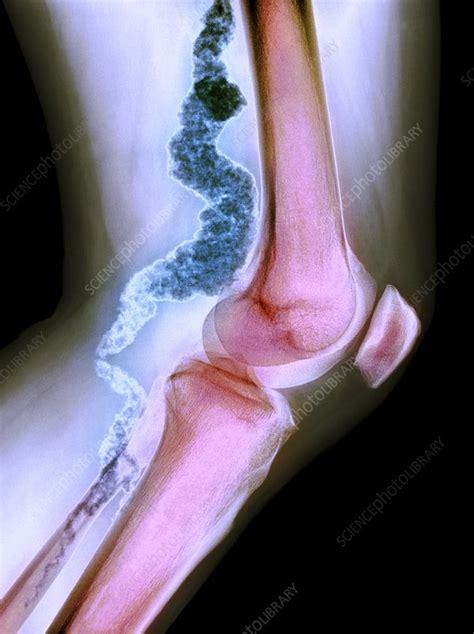 below knee utation knee in acdc x stock image c023 0738 science