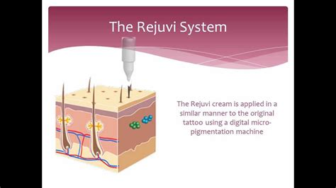 rejuvi tattoo removal removal non laser how it works rejuvi