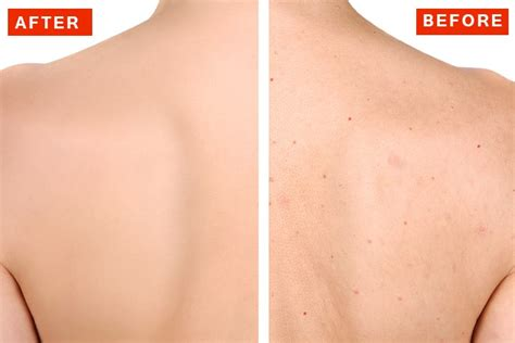 back tattoo zit how to get rid of back acne fast naturally