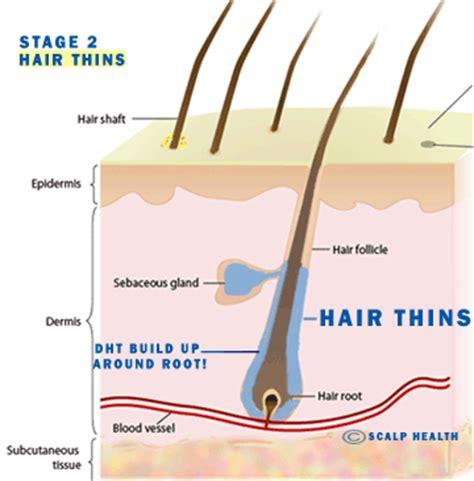 Do Hair Follicle Detox Shoos Work by Dht Blockers Including Shoo And Serum Best Sellers
