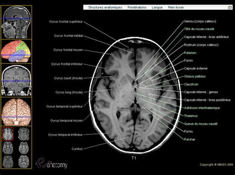atlas of anatomy by sectional imaging neuroanatomie neuranatomies neuranatomy neuroanatomies
