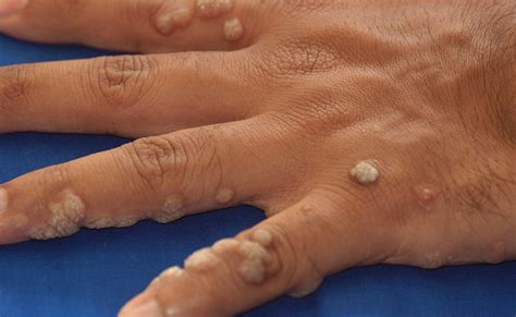 Are Planters Warts Contagious by Verrucae Vulgaris Anatomybox