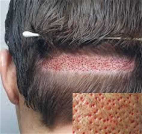 hair restoration hair transplant hair replacement follicular unit fue follicular unit hair transplantation and extraction
